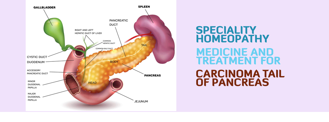 Carcinoma Tail of Pancreas Homeopathy Medicine