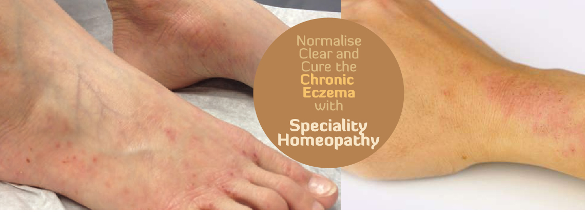 Eczema Atopic Dermatitis Speciality Homeopathy Treatment