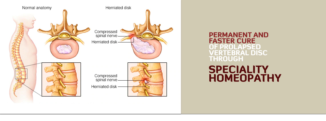 Prolapsed Vertebral Disc Speciality Homeopathy Treatment